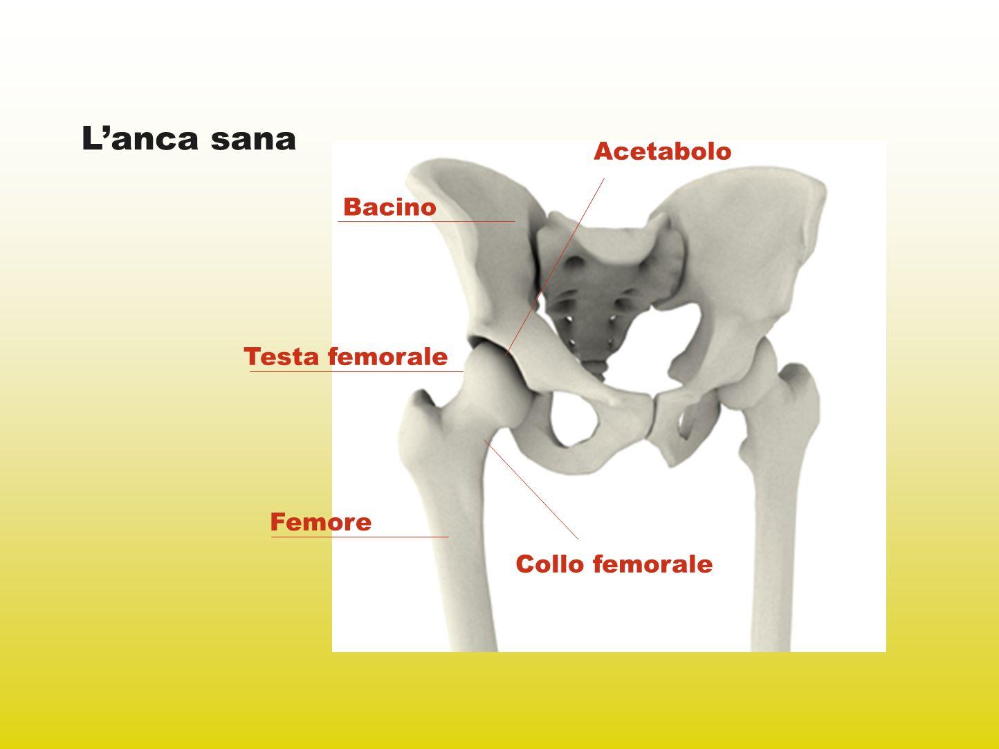 Lanca malata Anca artrosica: danni articolari dovuti allusura della cartilagine