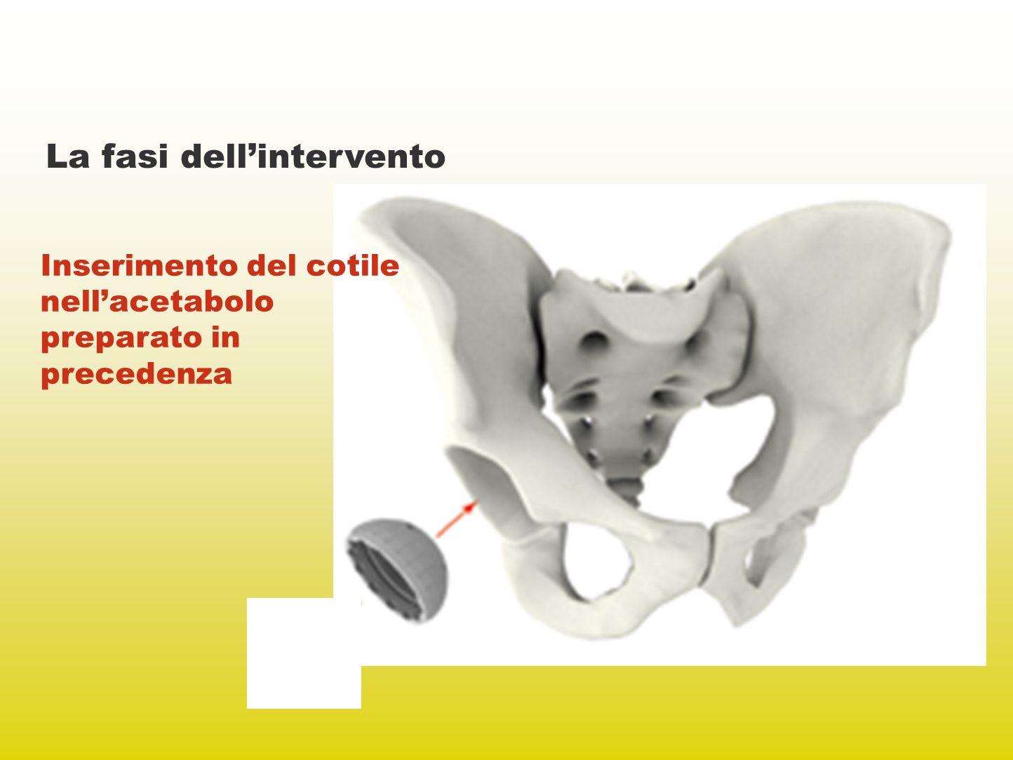 La fasi dellintervento Inserimento del cotile nellacetabolo preparato in precedenza