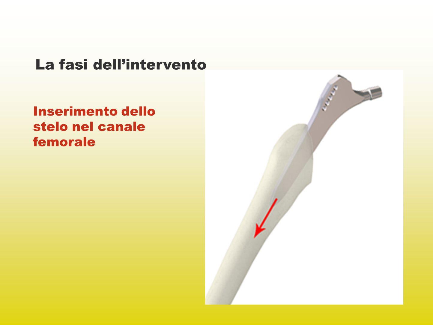 La fasi dellintervento Inserimento dello stelo nel canale femorale