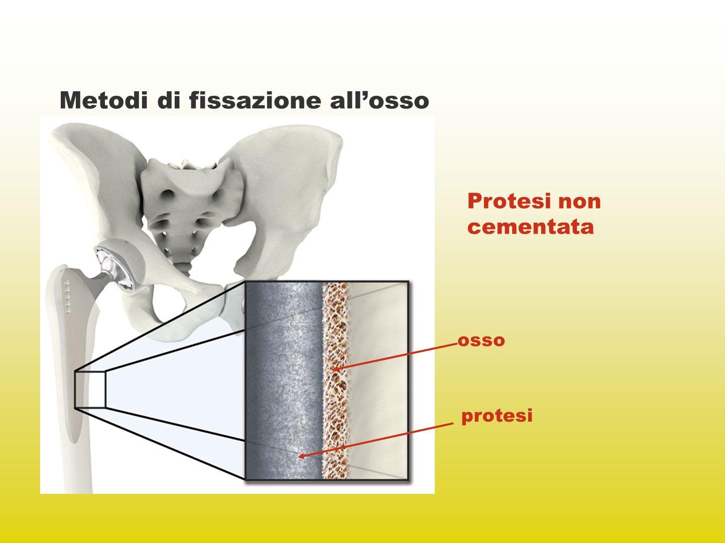 Metodi di fissazione allosso Protesi non cementata osso protesi
