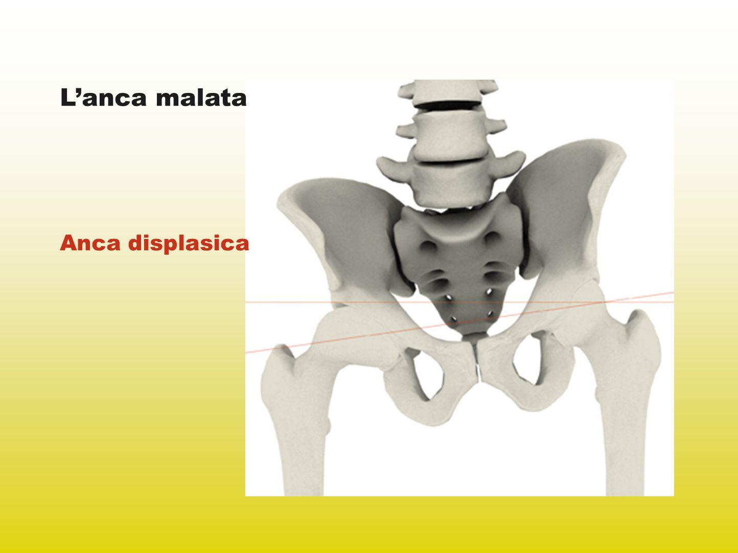 Radiografia postoperatoria La funzionalità e lanatomia dellanca sono state ripristinate