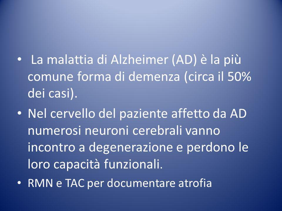 La malattia di Alzheimer (AD) è la più comune forma di demenza (circa il 50% dei casi). Nel cervello del paziente affetto da AD numerosi neuroni cereb