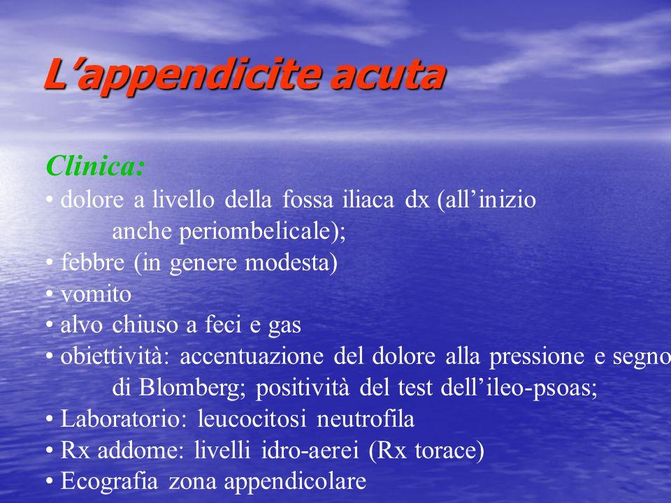 Lappendicite acuta Clinica: dolore a livello della fossa iliaca dx (allinizio anche periombelicale); febbre (in genere modesta) vomito alvo chiuso a f