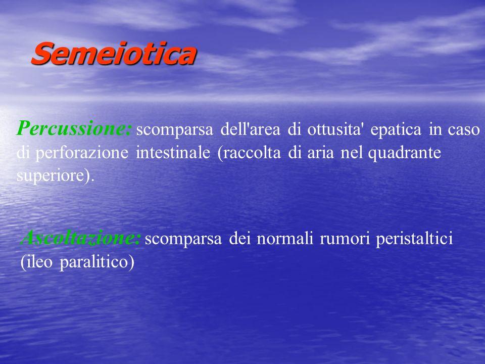 Semeiotica Percussione: scomparsa dell'area di ottusita' epatica in caso di perforazione intestinale (raccolta di aria nel quadrante superiore). Ascol