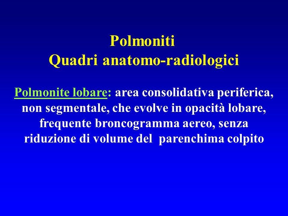 Polmoniti Quadri anatomo-radiologici Polmonite lobare: area consolidativa periferica, non segmentale, che evolve in opacità lobare, frequente broncogr
