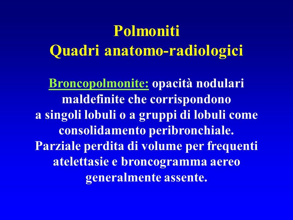 Polmoniti Quadri anatomo-radiologici Broncopolmonite: opacità nodulari maldefinite che corrispondono a singoli lobuli o a gruppi di lobuli come consol