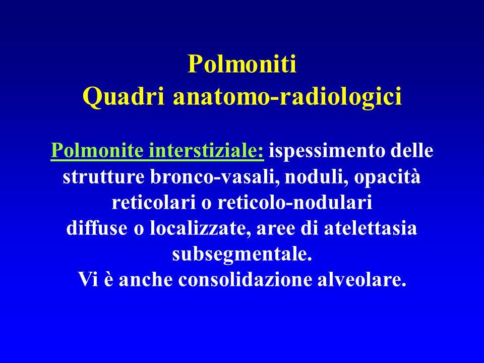 Polmoniti Quadri anatomo-radiologici Polmonite interstiziale: ispessimento delle strutture bronco-vasali, noduli, opacità reticolari o reticolo-nodula