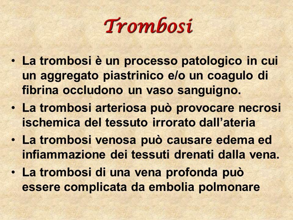 Trombosi La trombosi è un processo patologico in cui un aggregato piastrinico e/o un coagulo di fibrina occludono un vaso sanguigno. La trombosi arter