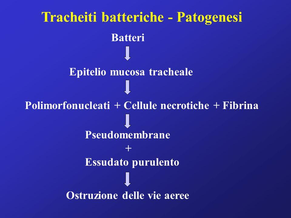 Tracheiti batteriche - Patogenesi Batteri Epitelio mucosa tracheale Polimorfonucleati + Cellule necrotiche + Fibrina Pseudomembrane + Essudato purulento Ostruzione delle vie aeree