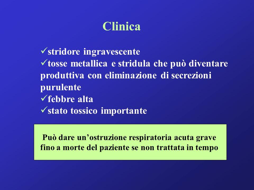 Clinica stridore ingravescente tosse metallica e stridula che può diventare produttiva con eliminazione di secrezioni purulente febbre alta stato toss