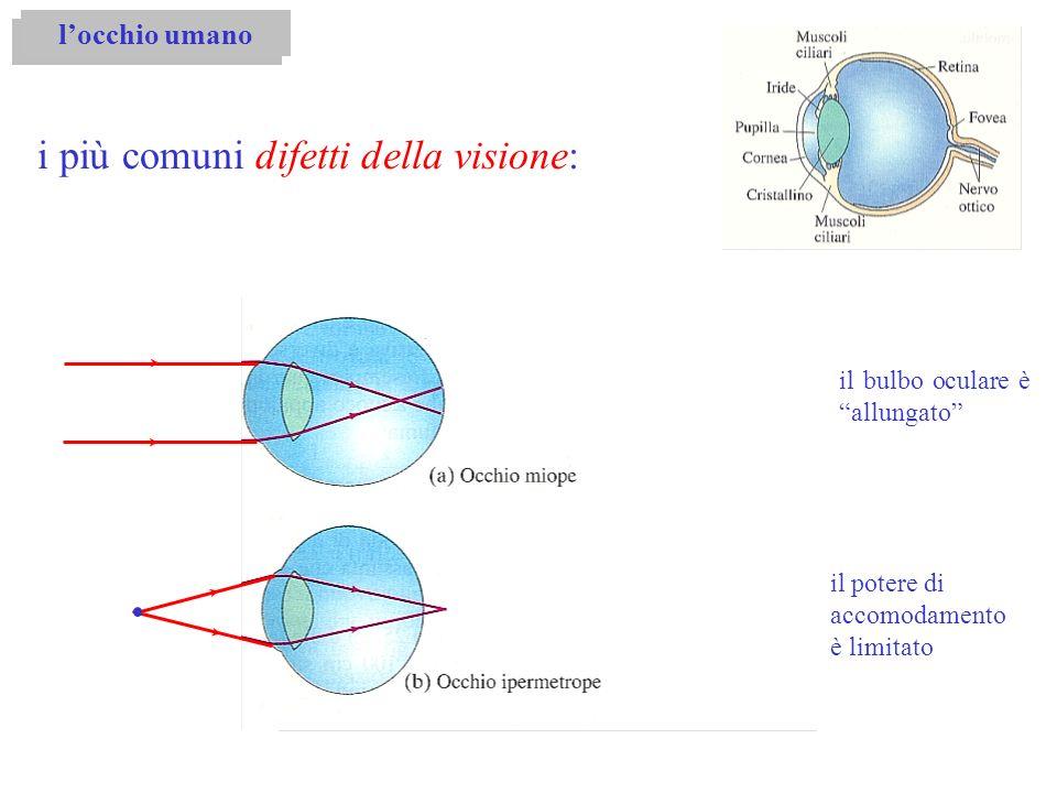 i più comuni difetti della visione: locchio umano il bulbo oculare è allungato il potere di accomodamento è limitato