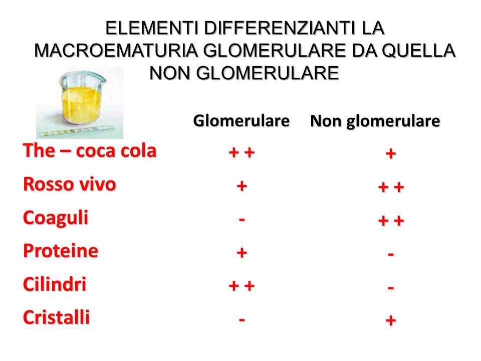The – coca cola Rosso vivo CoaguliProteineCilindriCristalli Glomerulare + + +-+ - Non glomerulare Non glomerulare+ + + --+ ELEMENTI DIFFERENZIANTI LA MACROEMATURIA GLOMERULARE DA QUELLA NON GLOMERULARE