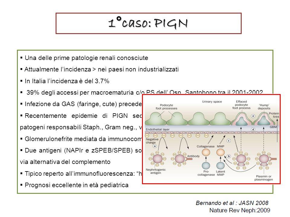 1°caso: PIGN Una delle prime patologie renali conosciute Attualmente lincidenza > nei paesi non industrializzati In Italia lincidenza è del 3.7% 39% degli accessi per macroematuria c/o PS dell Osp.