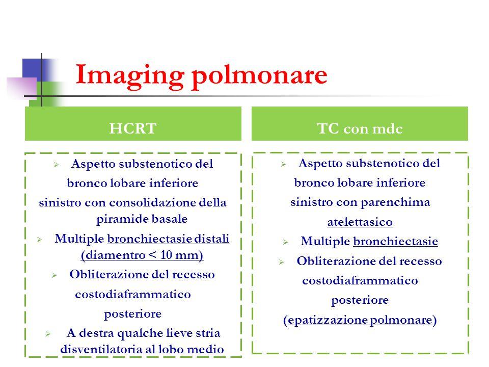 Imaging polmonare TC con mdc Aspetto substenotico del bronco lobare inferiore sinistro con parenchima atelettasico Multiple bronchiectasie Obliterazio