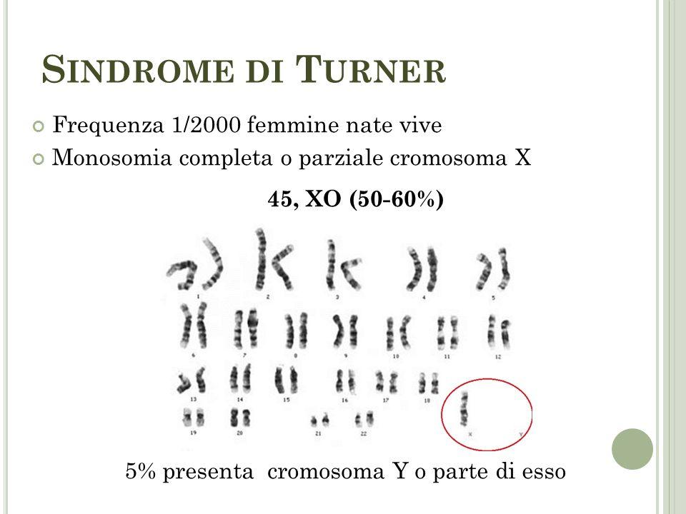 S INDROME DI T URNER Frequenza 1/2000 femmine nate vive Monosomia completa o parziale cromosoma X 45, XO (50-60%) 5% presenta cromosoma Y o parte di e