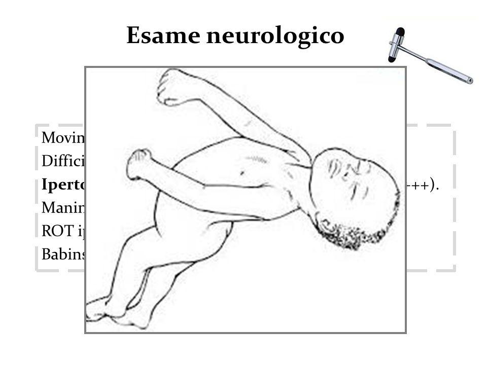 Movimenti spontanei rarissimi. Difficile e rarissimo laggancio visivo. Ipertono muscolare generalizzato (arti inferiori: +++). Manine chiuse a pugno.