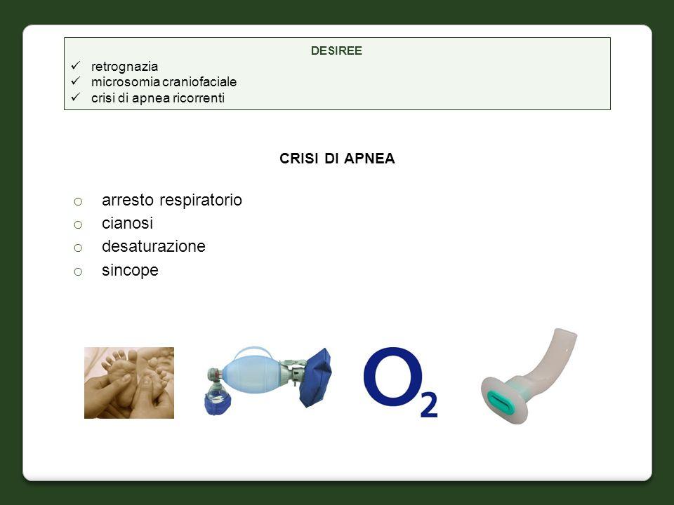 CRISI DI APNEA o arresto respiratorio o cianosi o desaturazione o sincope DESIREE retrognazia microsomia craniofaciale crisi di apnea ricorrenti