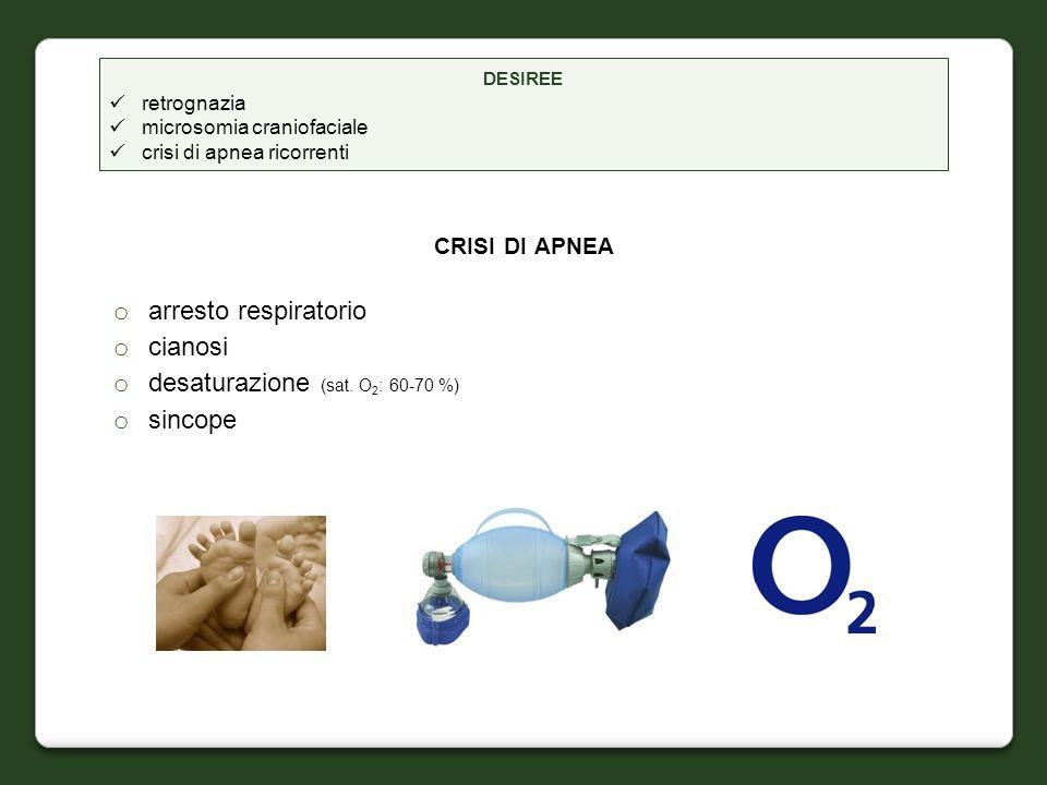 CRISI DI APNEA o arresto respiratorio o cianosi o desaturazione (sat. O 2 : 60-70 %) o sincope DESIREE retrognazia microsomia craniofaciale crisi di a