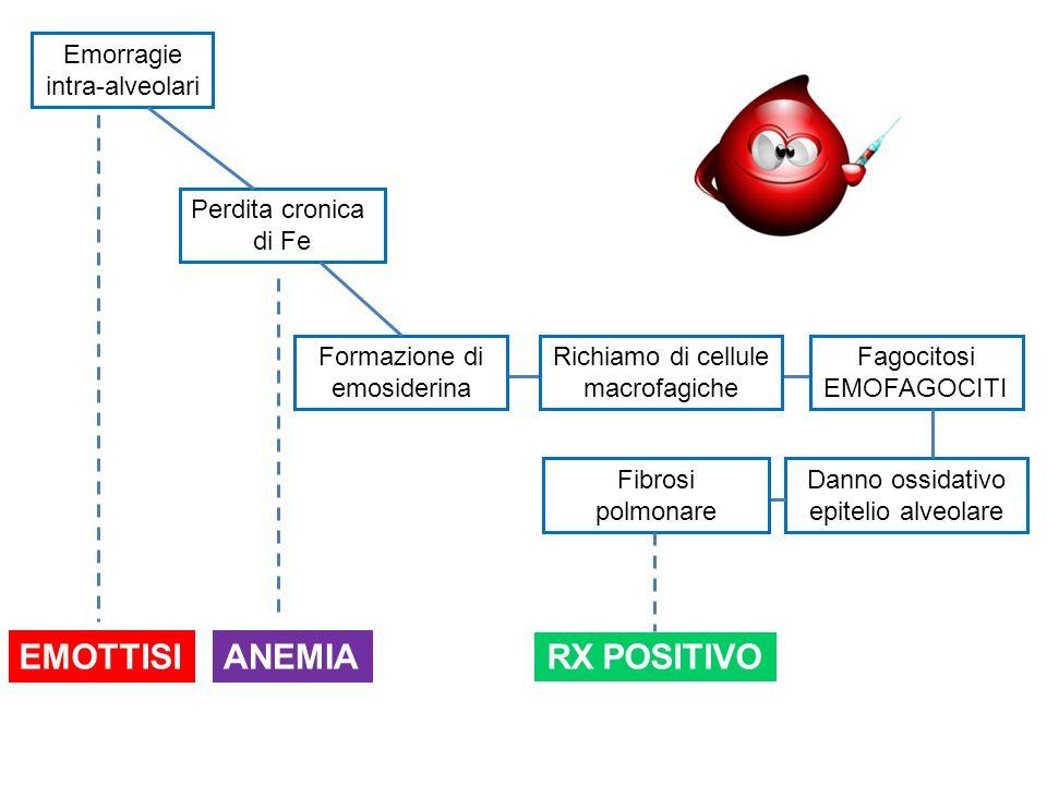 Emorragie intra-alveolari Perdita cronica di Fe Richiamo di cellule macrofagiche RX POSITIVO Formazione di emosiderina Fagocitosi EMOFAGOCITI Danno os
