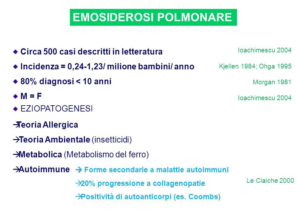 EMOSIDEROSI POLMONARE Circa 500 casi descritti in letteratura Incidenza = 0,24-1,23/ milione bambini/ anno 80% diagnosi < 10 anni M = F Ioachimescu 20