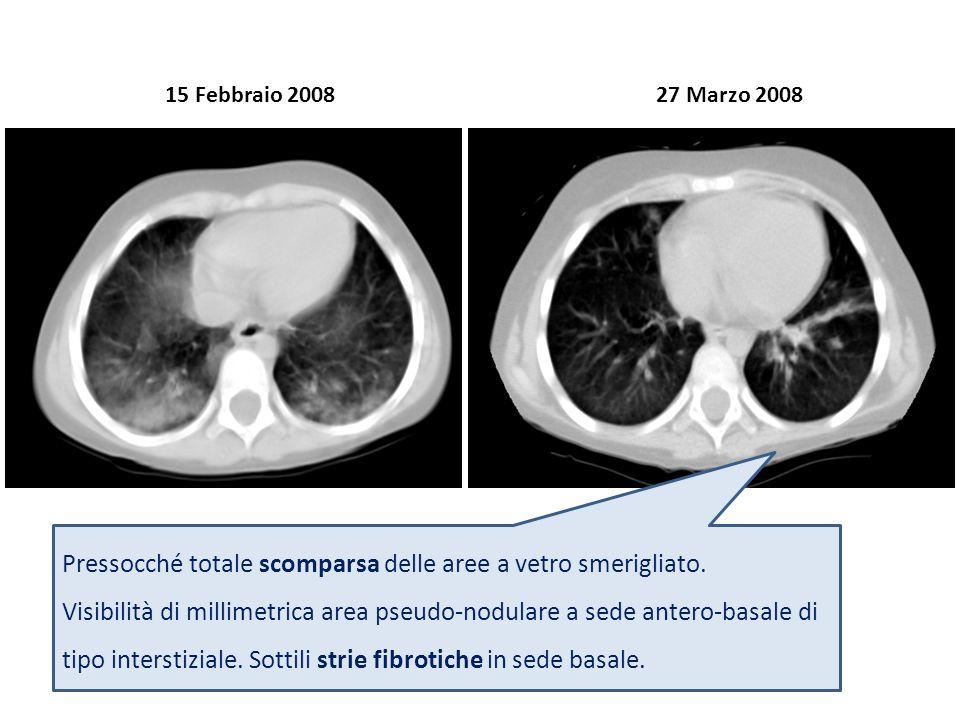 15 Febbraio 200827 Marzo 2008 Pressocché totale scomparsa delle aree a vetro smerigliato. Visibilità di millimetrica area pseudo-nodulare a sede anter