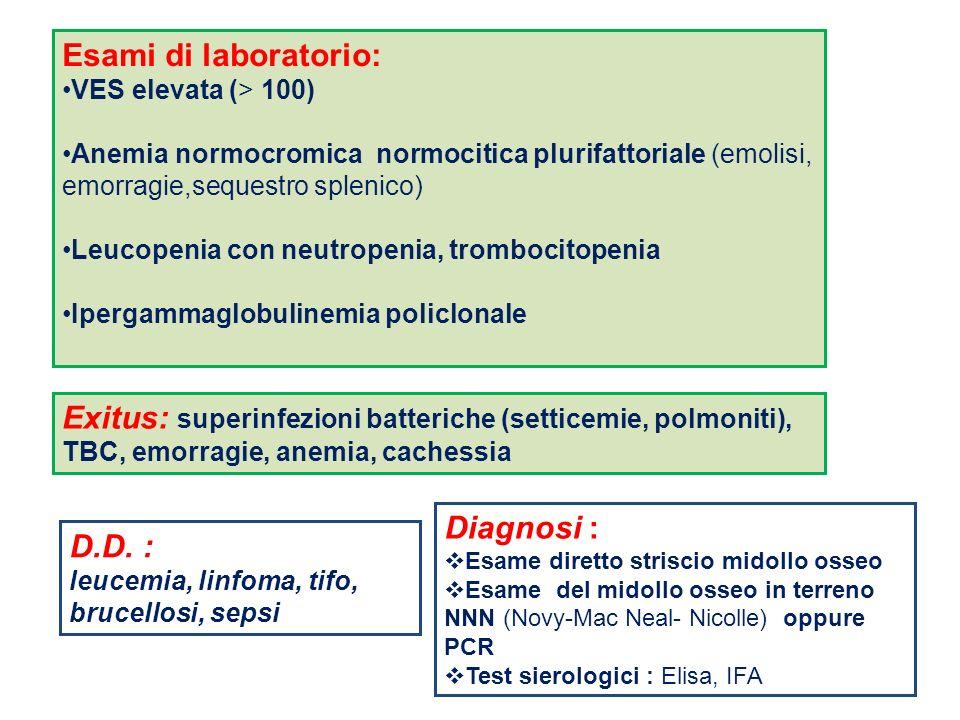 Esami di laboratorio: VES elevata (> 100) Anemia normocromica normocitica plurifattoriale (emolisi, emorragie,sequestro splenico) Leucopenia con neutr