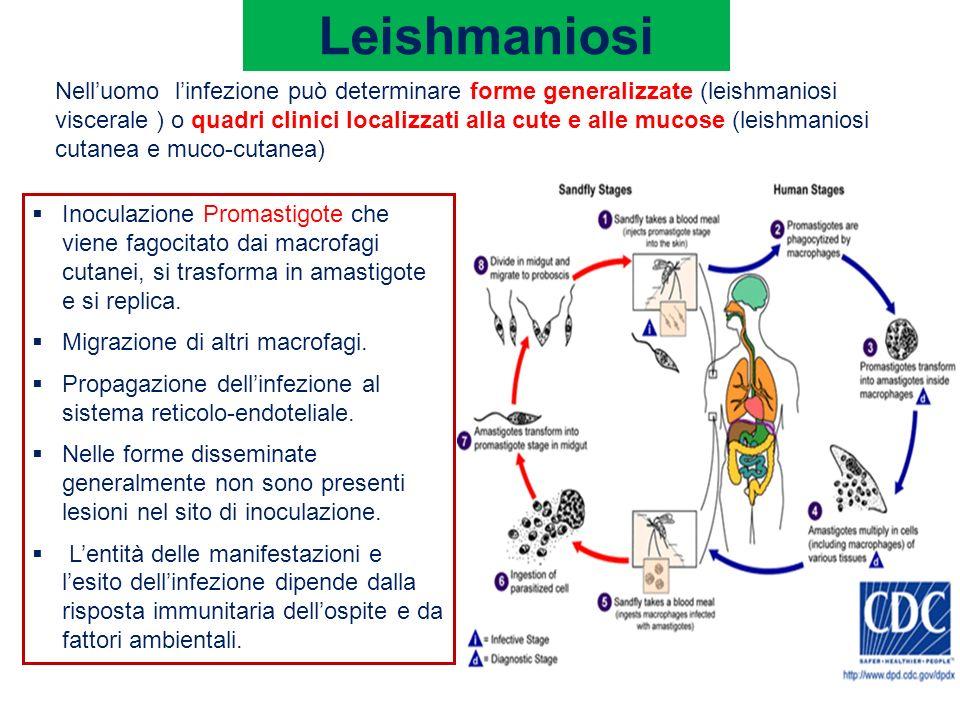 Leishmaniosi Nelluomo linfezione può determinare forme generalizzate (leishmaniosi viscerale ) o quadri clinici localizzati alla cute e alle mucose (l
