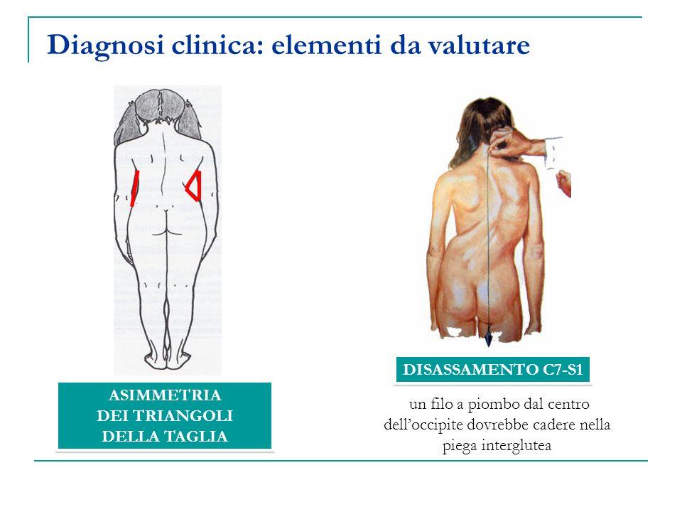 ASIMMETRIA DEI TRIANGOLI DELLA TAGLIA ASIMMETRIA DEI TRIANGOLI DELLA TAGLIA Diagnosi clinica: elementi da valutare DISASSAMENTO C7-S1 un filo a piombo