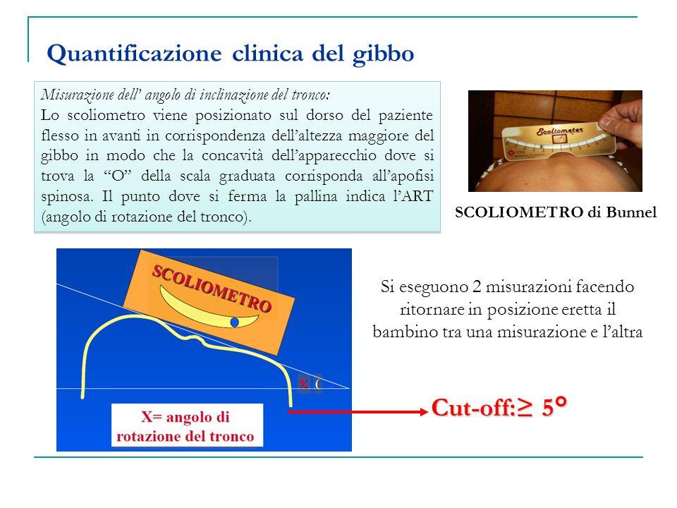 Quantificazione clinica del gibbo Cut-off: 5° SCOLIOMETRO di Bunnel Misurazione dell angolo di inclinazione del tronco: Lo scoliometro viene posiziona