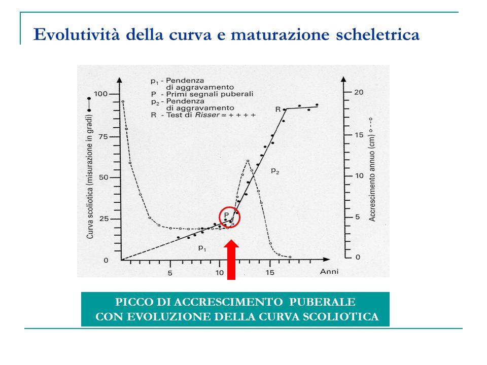 Evolutività della curva e maturazione scheletrica PICCO DI ACCRESCIMENTO PUBERALE CON EVOLUZIONE DELLA CURVA SCOLIOTICA