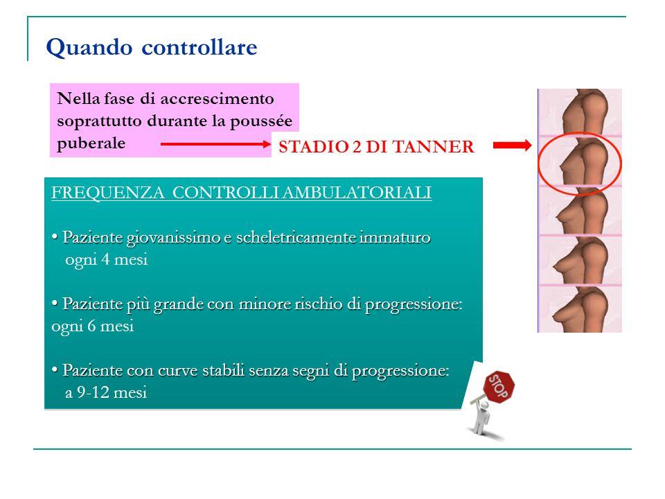 Quando controllare Nella fase di accrescimento soprattutto durante la poussée puberale FREQUENZA CONTROLLI AMBULATORIALI Paziente giovanissimo e schel