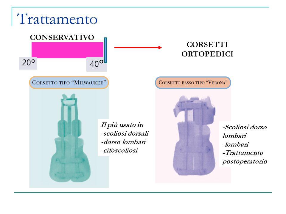 Trattamento 40 ° 20° CONSERVATIVO CORSETTI ORTOPEDICI Il più usato in -scoliosi dorsali -dorso lombari -cifoscoliosi -Scoliosi dorso lombari -lombari