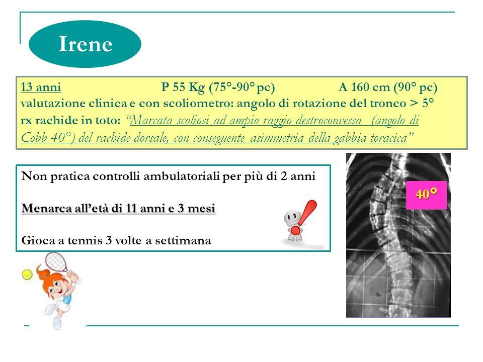 Irene 40°40° 13 anni P 55 Kg (75°-90° pc) A 160 cm (90° pc) valutazione clinica e con scoliometro: angolo di rotazione del tronco > 5° rx rachide in t