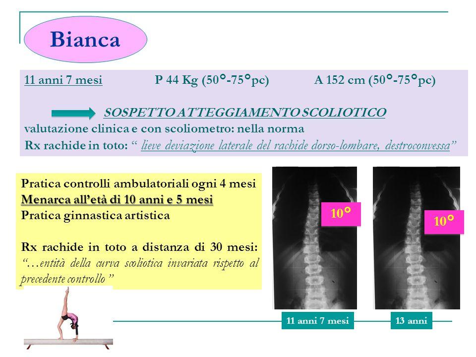 TRATTAMENTO 0°20° WAIT AND SEE CINESITERAPIA/GINNASTICA CORRETTIVA/ESERCIZI SPECIFICI - miglioramento del controllo neuromotorio e posturale del rachide dellequilibrio e della propriocezione - rinforzo della funzione tonica della muscolatura del tronco Valore angolare NESSUNA EFFICACIA PROVATA