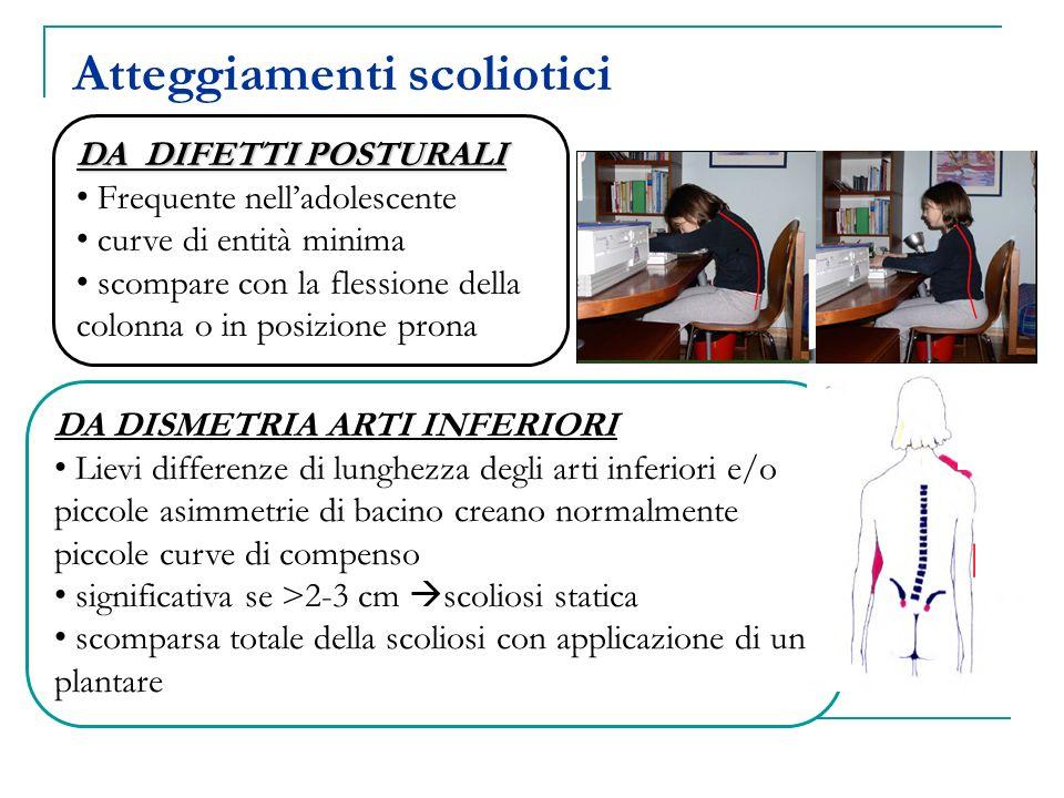 IDIOPATICA - infantile - giovanile - delladolescente CONGENITA - mancata formazione (vertebre cuneiformi,emivertebre) - mancata segmentazione (barra unilaterale, vertebra a blocco, mista) NEUROMUSCOLARE NEUROPATIE - motoneurone superiore: paralisi cerebrale, atassia di Friederich, m.di Charcot-Marie-Tooth, siringomelia - tumore o trauma del midollo spinale - motoneurone inferiore: poliomielite, atrofia muscolare spinale MIOPATIE: - distrofia muscolare di Duchenne - artrogriposi - altre distrofie muscolari SINDROMI: Neurofibromatosi, S.