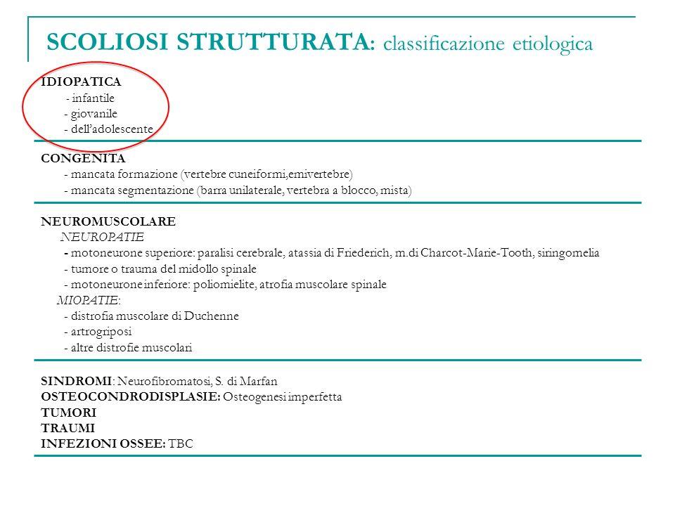 IDIOPATICA - infantile - giovanile - delladolescente CONGENITA - mancata formazione (vertebre cuneiformi,emivertebre) - mancata segmentazione (barra u