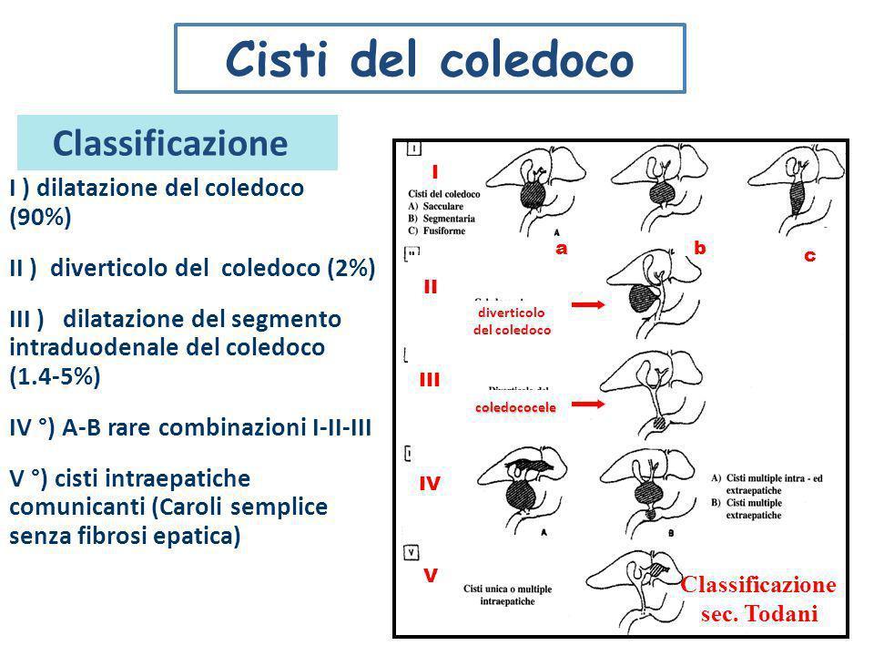 I ) dilatazione del coledoco (90%) II ) diverticolo del coledoco (2%) III ) dilatazione del segmento intraduodenale del coledoco (1.4-5%) IV °) A-B ra