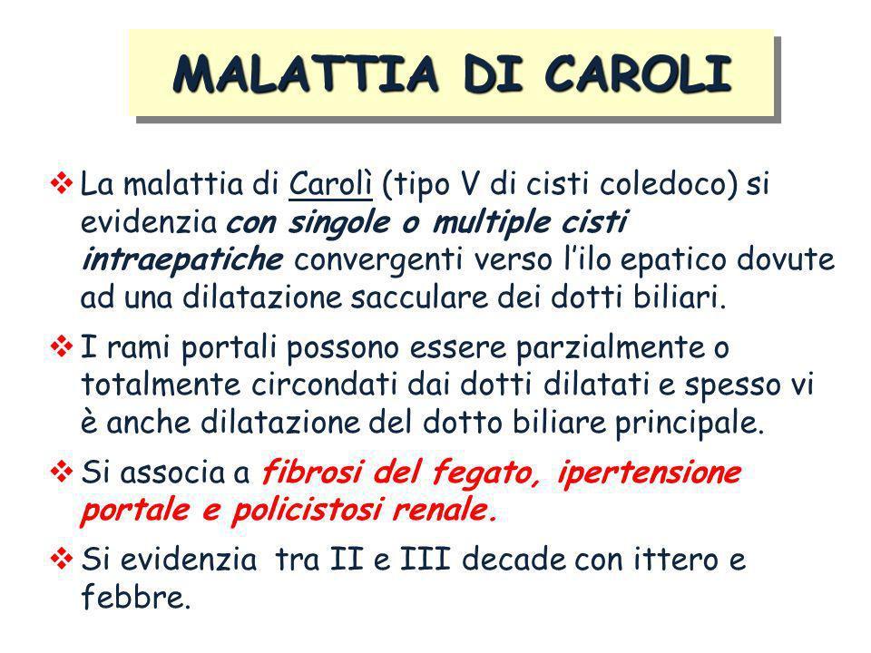 La malattia di Carolì (tipo V di cisti coledoco) si evidenzia con singole o multiple cisti intraepatiche convergenti verso lilo epatico dovute ad una