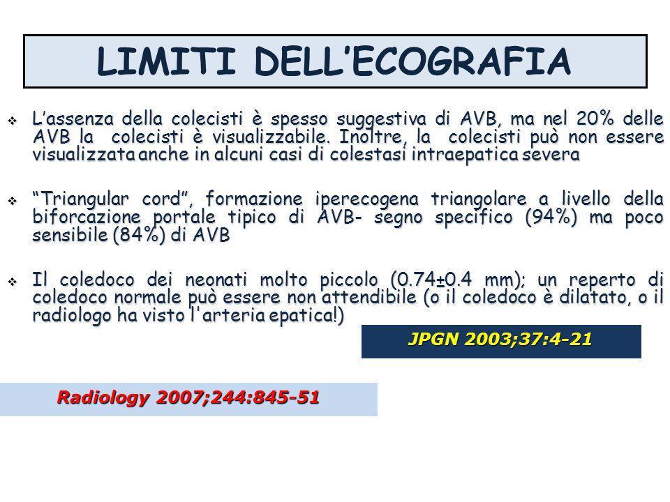 LIMITI DELLECOGRAFIA Lassenza della colecisti è spesso suggestiva di AVB, ma nel 20% delle AVB la colecisti è visualizzabile. Inoltre, la colecisti pu