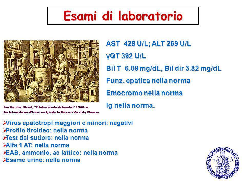 Jan Van der Straet, Il laboratorio alchemico 1560 ca. Incisione da un affresco originale in Palazzo Vecchio, Firenze AST 428 U/L; ALT 269 U/L γGT 392
