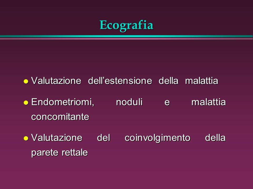 Ecografia l Valutazione dellestensione della malattia l Endometriomi, noduli e malattia concomitante l Valutazione del coinvolgimento della parete ret