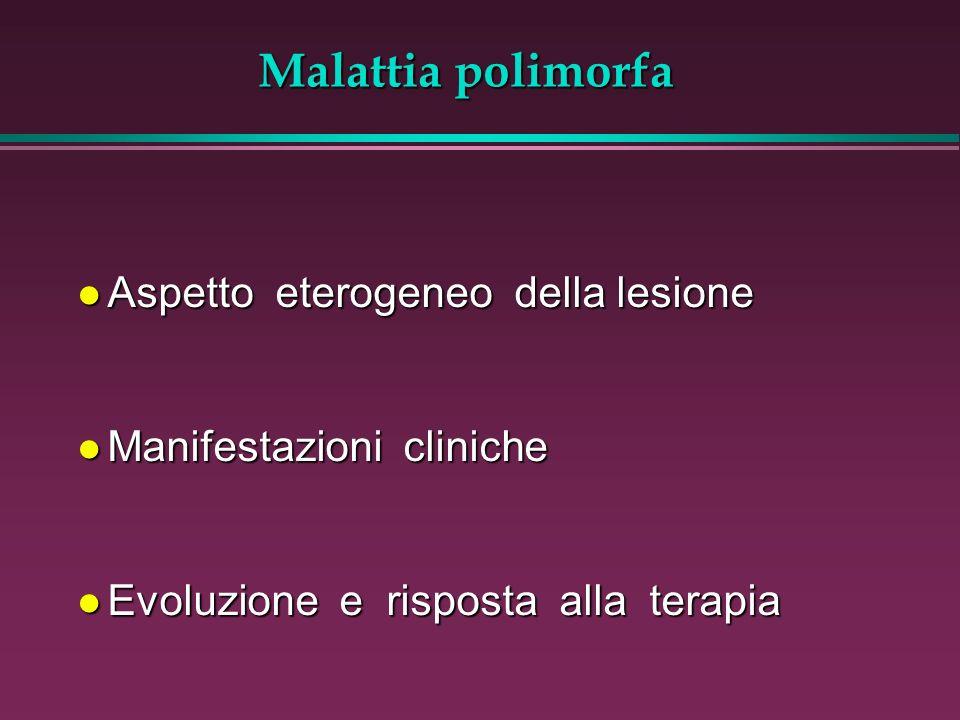 Malattia polimorfa l Aspetto eterogeneo della lesione l Manifestazioni cliniche l Evoluzione e risposta alla terapia