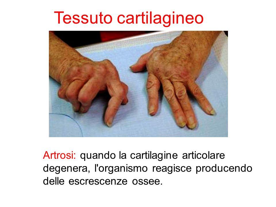 Artrosi: quando la cartilagine articolare degenera, l'organismo reagisce producendo delle escrescenze ossee. Tessuto cartilagineo