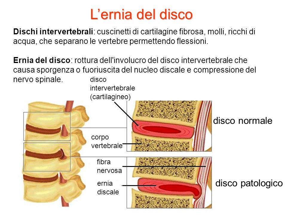 Lernia del disco disco intervertebrale (cartilagineo) corpo vertebrale ernia discale fibra nervosa disco patologico disco normale Dischi intervertebra
