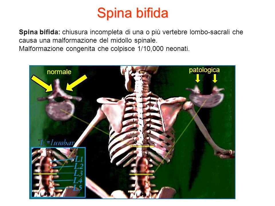 Spina bifida Spina bifida: chiusura incompleta di una o più vertebre lombo-sacrali che causa una malformazione del midollo spinale. Malformazione cong