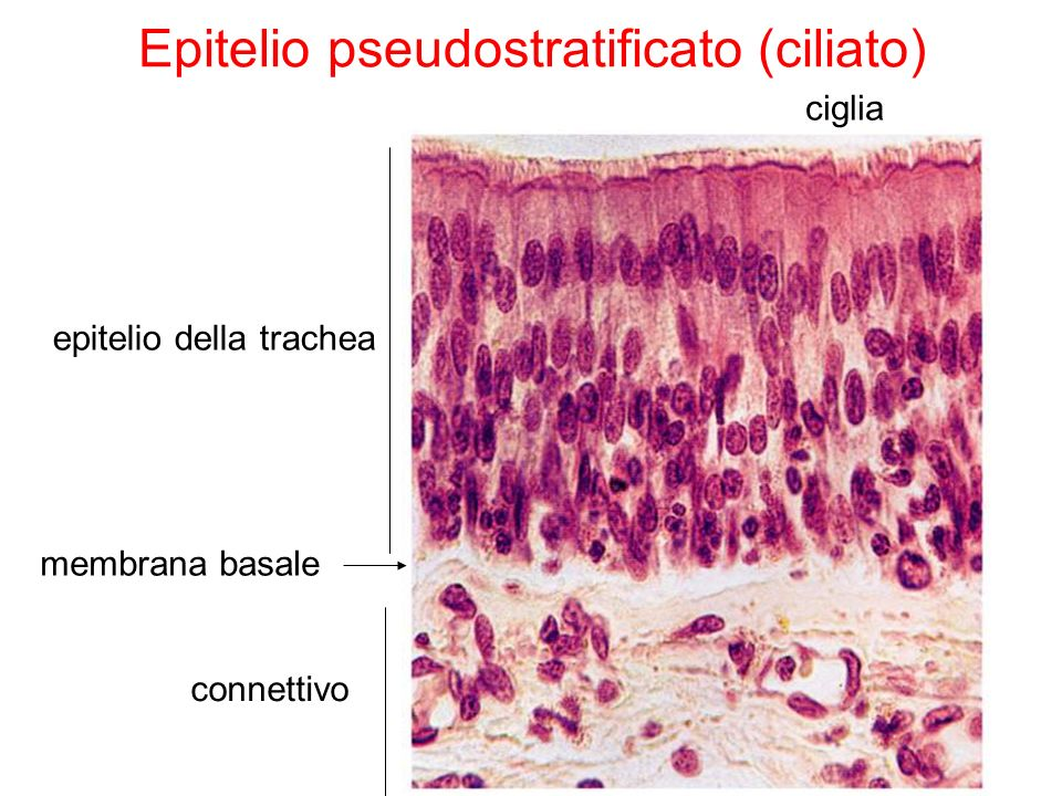 connettivo epitelio della trachea ciglia membrana basale Epitelio pseudostratificato (ciliato)