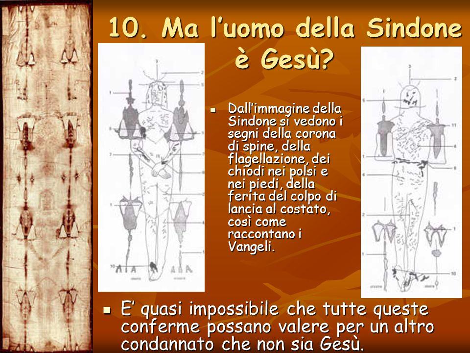 Dallimmagine della Sindone si vedono i segni della corona di spine, della flagellazione, dei chiodi nei polsi e nei piedi, della ferita del colpo di l