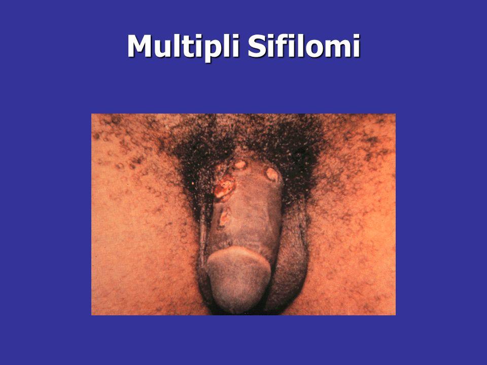 Multipli Sifilomi
