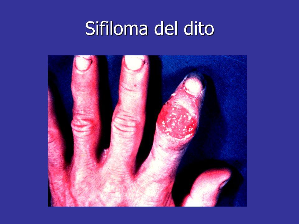 Sifiloma del dito