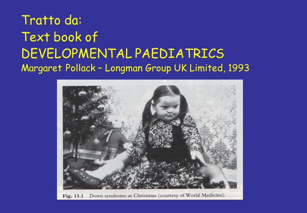Tratto da: Text book of DEVELOPMENTAL PAEDIATRICS Margaret Pollack – Longman Group UK Limited, 1993